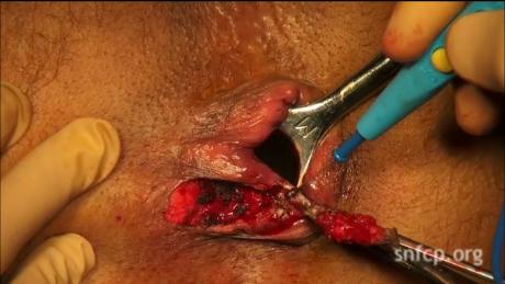 Le traitement laser de la varicosité de la conséquence