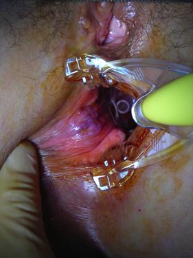 hemorroide externe operation