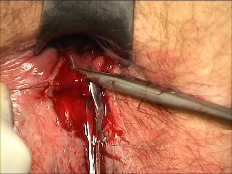 Figure 10 : Suture de la tranche muqueuse au sphincter interne. Point latéral droit