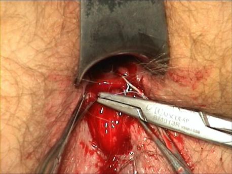 Figure 9 : Suture de la tranche muqueuse au sphincter interne.