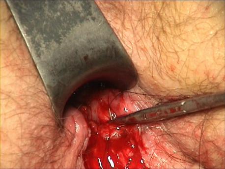 Figure 11 : Suture de la tranche muqueuse au sphincter interne. Point latéral gauche
