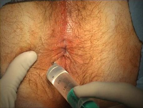 Figure 1 : Bloc anesthésique.