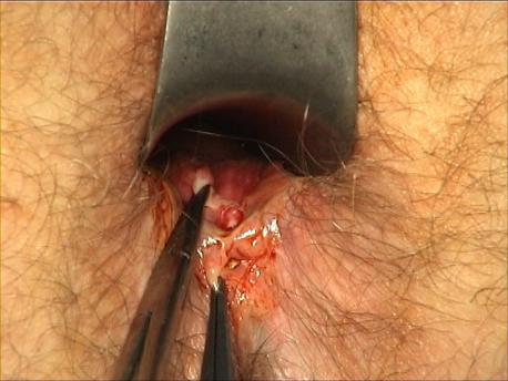 Figure 2 : Exposition de la fissure postérieure. Mise sur pinces de la fissure (papille à son pôle interne, fistulette sous cutanée à son pôle externe).
