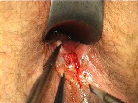 Figure 3 : Dissection du cadre de la fissure au bistouri à lame.