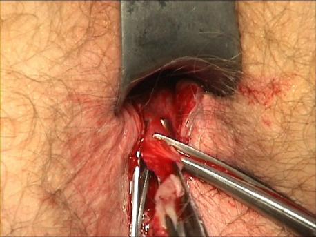 Figure 8 : Résection de la fissure.