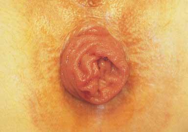 Prolapsus rectal : intervention de Delorme » SNFCP