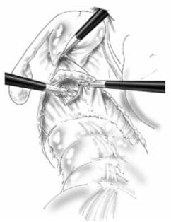 Vue opératoire de la dissection de la cloison recto-vaginale (D'Hoore et al Surg Endosc 2006 ;20 :1919-23).