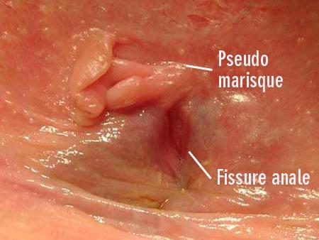 Le traitement de la fissure anale amelifr