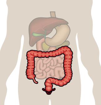 La rectocolite hémorragique » SNFCP
