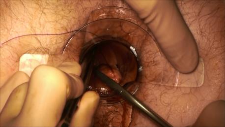 Figure 6 : le faufilage a couvert l'hémi circonférence antérieure et arrive ici en postéro gauche.